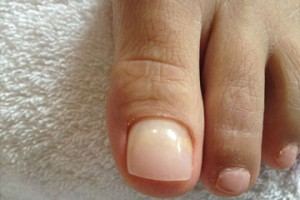 This photo shows the improved appearance of the nail after the application of the Keryflex product.